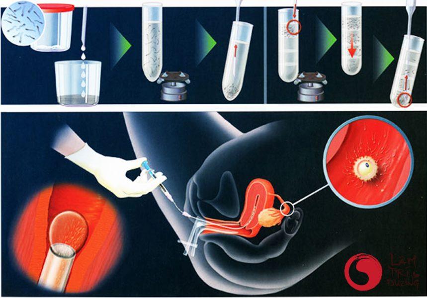 Thụ tin nhân tạo: giải quyết nguyên nhân gây hiếm muộn ở nam giới do tinh trùng yếu